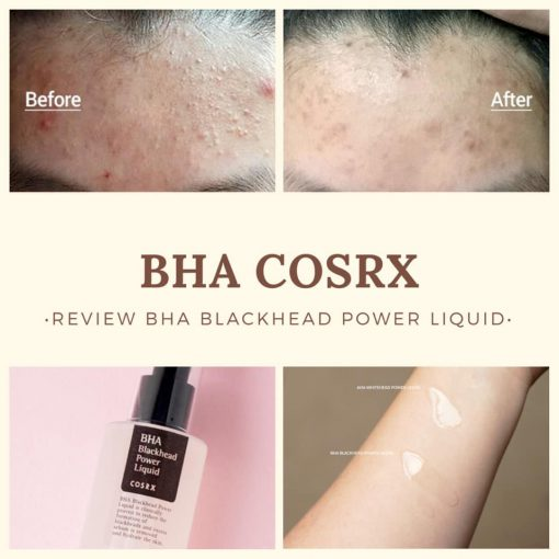 tay-da-chet-cosrx-bha-blackhead-power-liquid-100ml