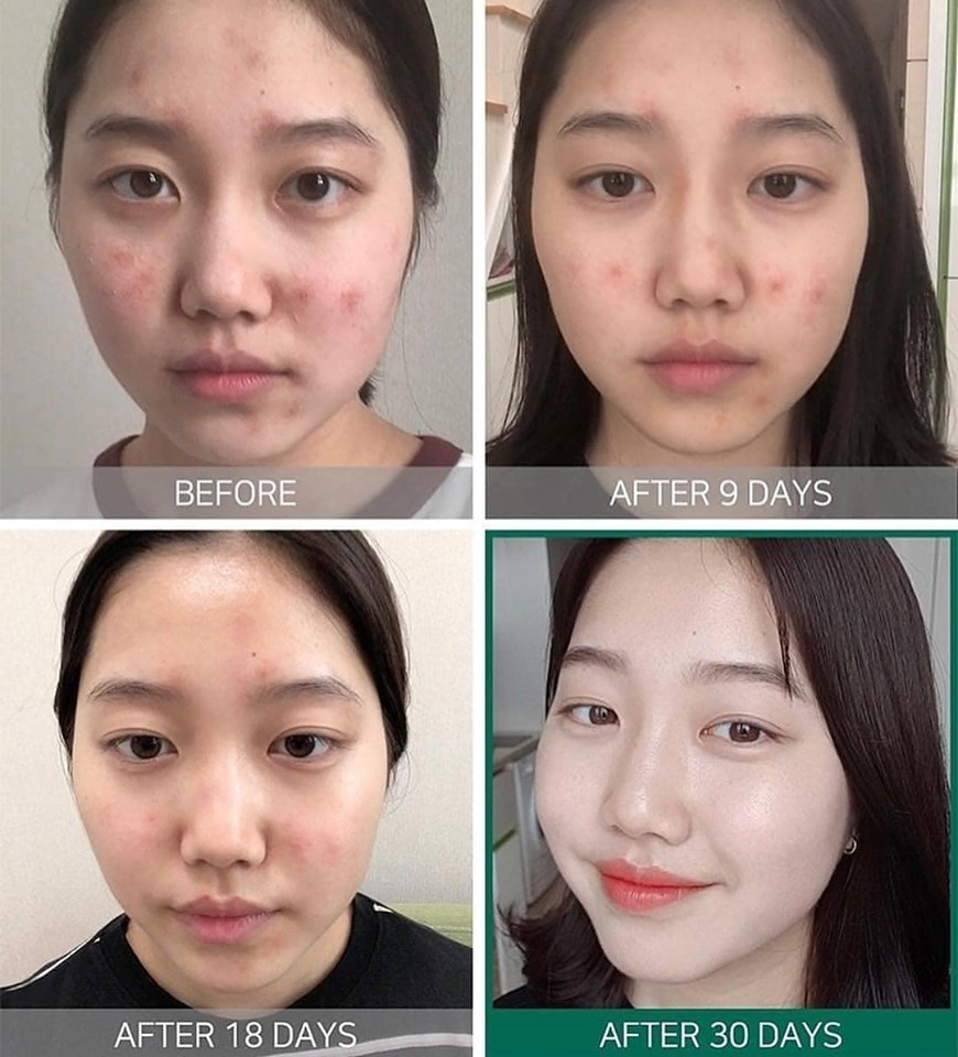serum-some-by-mi-aha-bha-pha-miracle-30-days