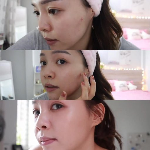 cham-mun-eucerin-pro-acne-solution-ai-clearing-treatment